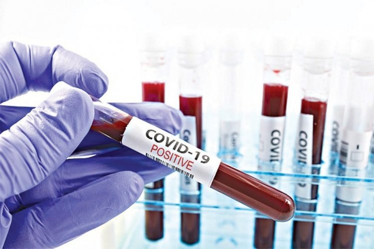 COVID-19 : Nigeria's Total Infection Surpass 65,000, 152 New Cases Recorded
